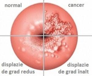 stadii cancer de col uterin